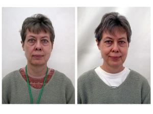 Antes y después de Peter Seidler/ daltitcoaching